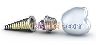 implant istanbul, implant tedavisi, diş tedavileri