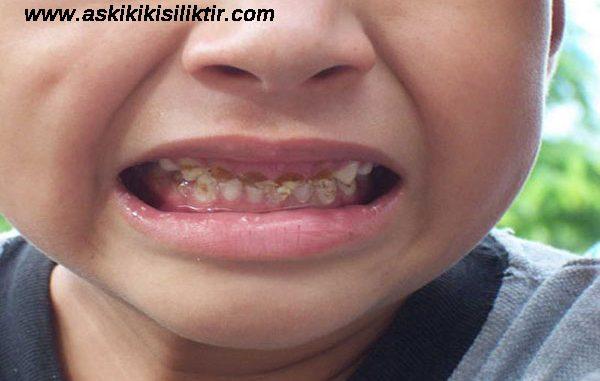 çocuklarda diş çürümesi, çocukların dişlerinin çürüme sebepleri, çocuklarda görülen diş çürüklerinin nedenleri