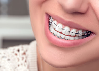 diş teli nasıl takılır, kaç farklı şekilde diş teli takılabilir, diş teli takılma şekilleri