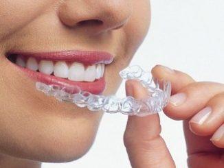 görünmez diş teli kullanımı, görünmez diş teli ne zaman kullanılır, görünmez diş teli kullanma nedeni