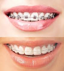 diş teli fiyatları, diş teli fiyatlarının belirlenmesi, diş tellerinin fiyatları ne kadar
