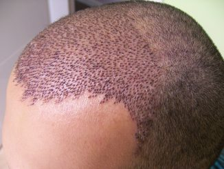 saç ekimi, saç ekimi yapımı