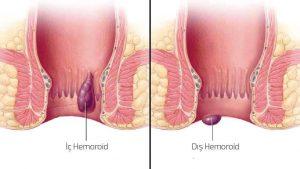 hemoroid tedavisi, hamilelikte hemoroid tedavisi yapımı, hemoroid nasıl tedavi edilir