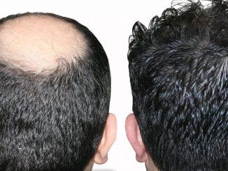 saç ekimi, saç ekim merkezleri, saç ekim graft merkezleri