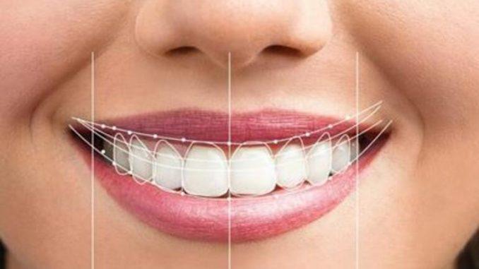 estetik diş hekimliği, diş estetiği, diş estetiği yapımı