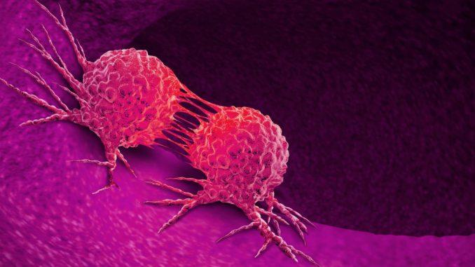 kanser belirtisi, kanser sebepleri neler, kanser nasıl tedavi edilir